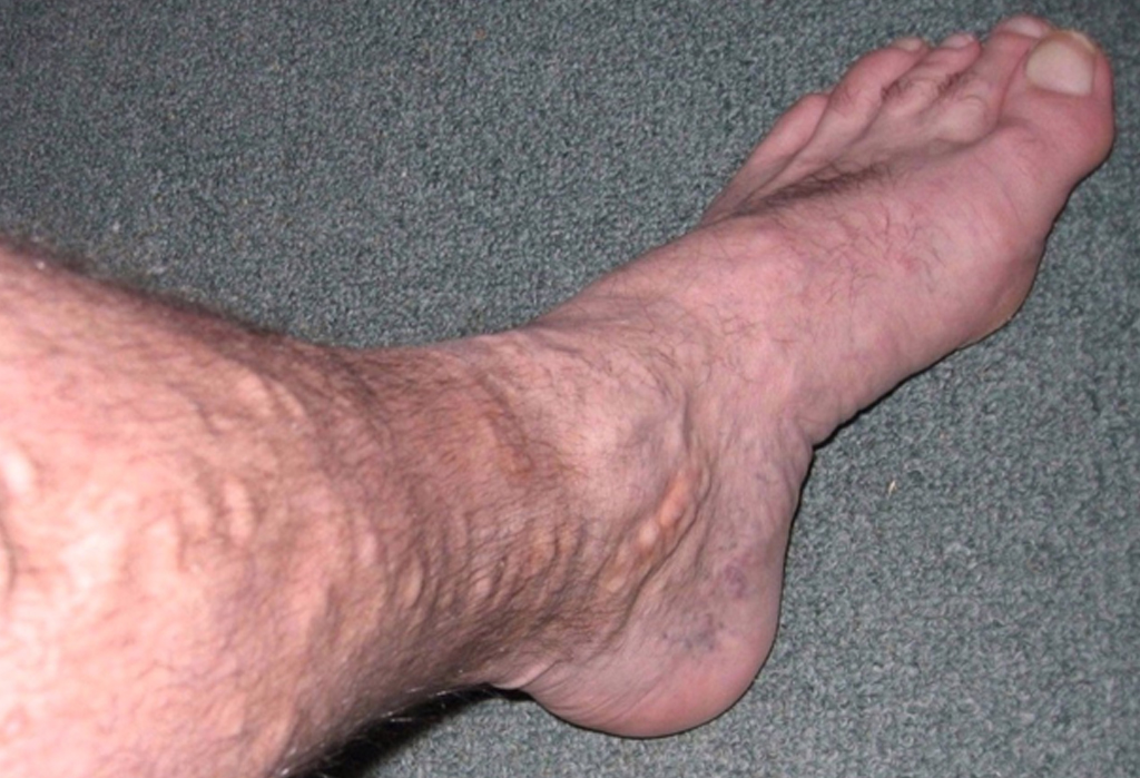 Varicose Vein Treatment Market